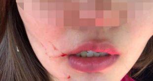 Nữ tiếp viên Đ.K.H. bị chấn thương phần mềm, tinh thần hoảng loạn