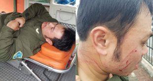 Nhân viên sân bay bị hành hung gãy 4 răng cửa.